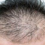 薄毛治療には、17型コラーゲンというたんぱく質が必要!