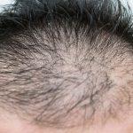 薄毛の人必見!髪の毛にいい栄養【知らなきゃ損する】
